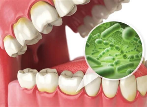 歯茎 痛い が の 奥歯